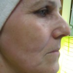 ULTHERA LIFTING -  Tesne po ošetrení