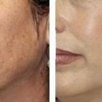 Pred a po ošetrení